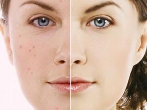 acne Toronto, IPL
