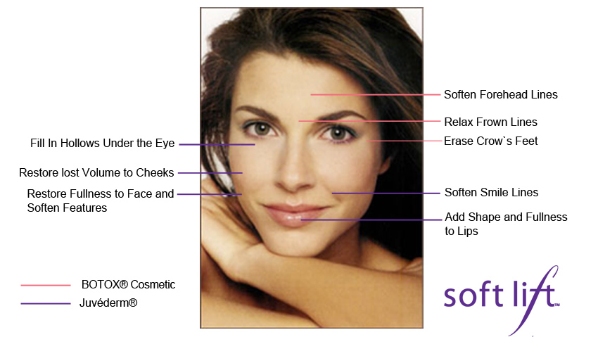 Reversing the Signs of Aging with a Soft Lift Treatment