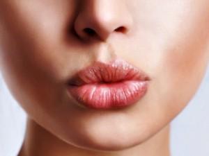 lip lines lip filler toronto