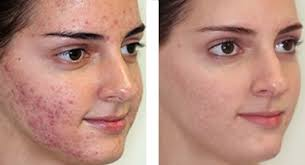 Acne Scars and IPL Treatments, IPL treatments Toronto