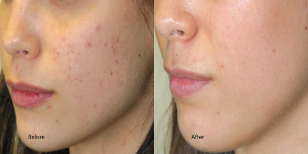 acne and chemical peel