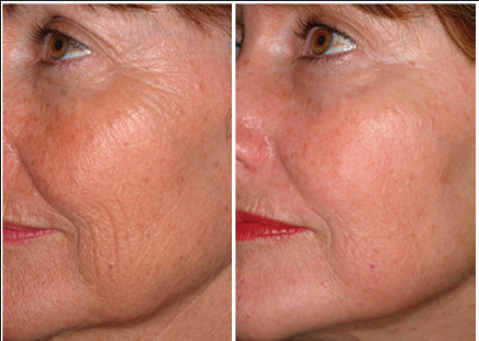 skin-tightening and ultherapy fraxel