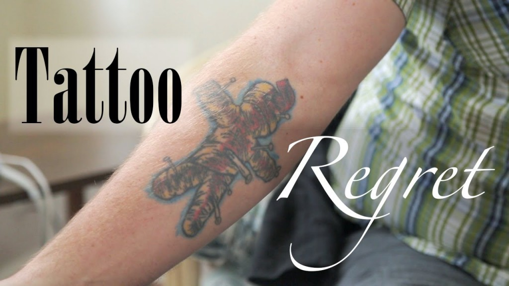 tattoo removal Toronto