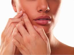acne peels Toronto
