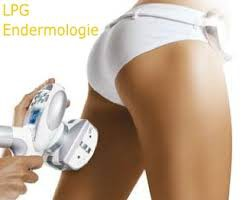 cellulite endermologie