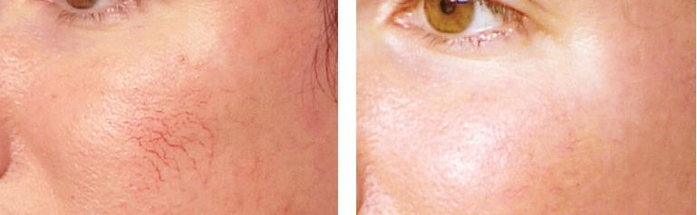 facial veins ipl