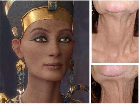 botox nefertiti lift