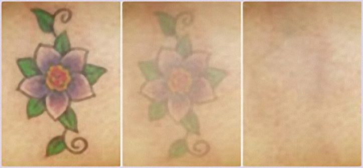laser tattoo removal Toronto