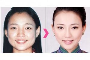 Botox and facial slimming
