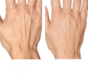 fillers for hands