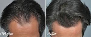 PRP-hair