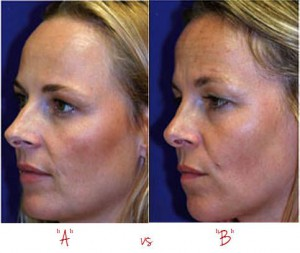 twins-with-and-without-botox-does botox prevent wrinkles