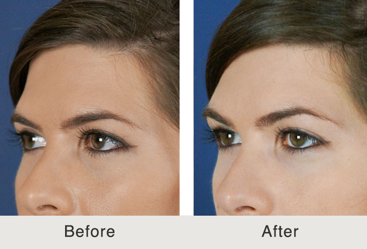 Get a Brow Lift Without Surgery
