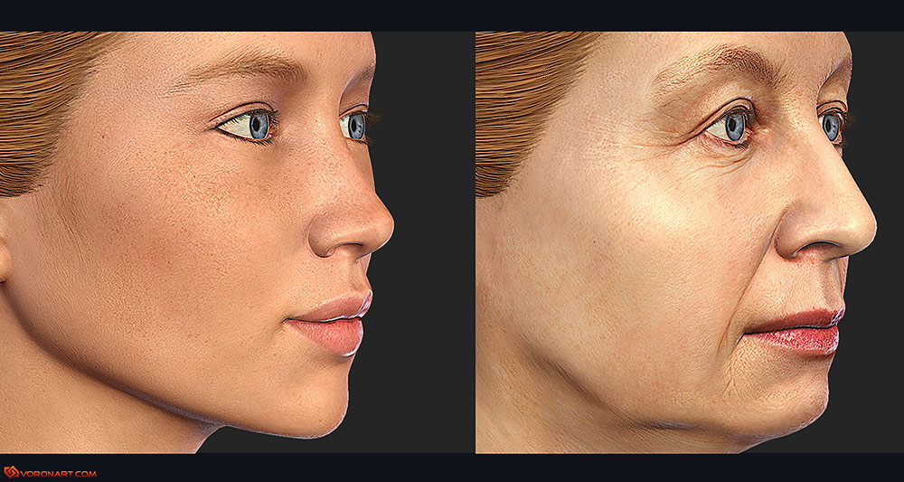 Reshaping The Aging Face With Fillers