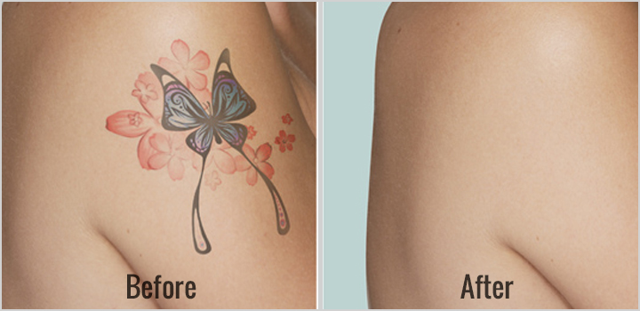 How Many Laser Sessions To Completely Remove A Tattoo?
