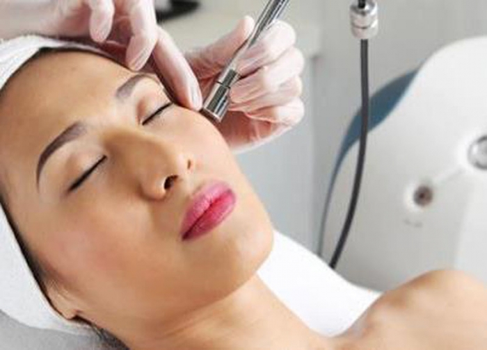 Microdermabrasion and Rosacea