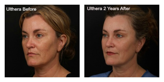 Is Ultherapy Only For The Face?
