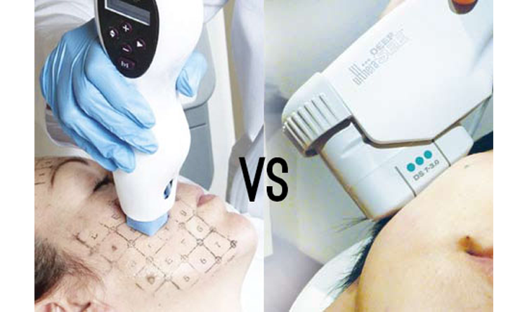 Ultherapy - Different Than Other Skin Tightening Procedures