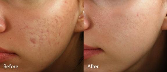 Correcting Acne Scars