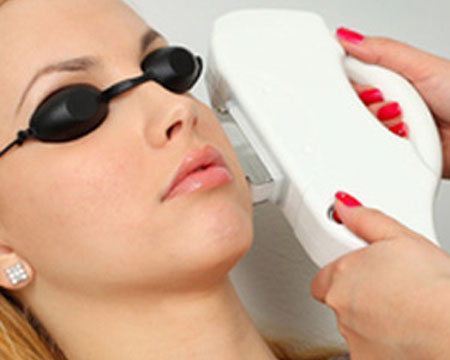 Rosacea and IPL Treatments