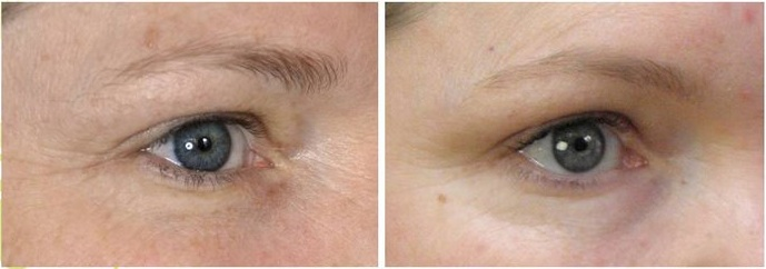 Micro Needling Around The Eyes