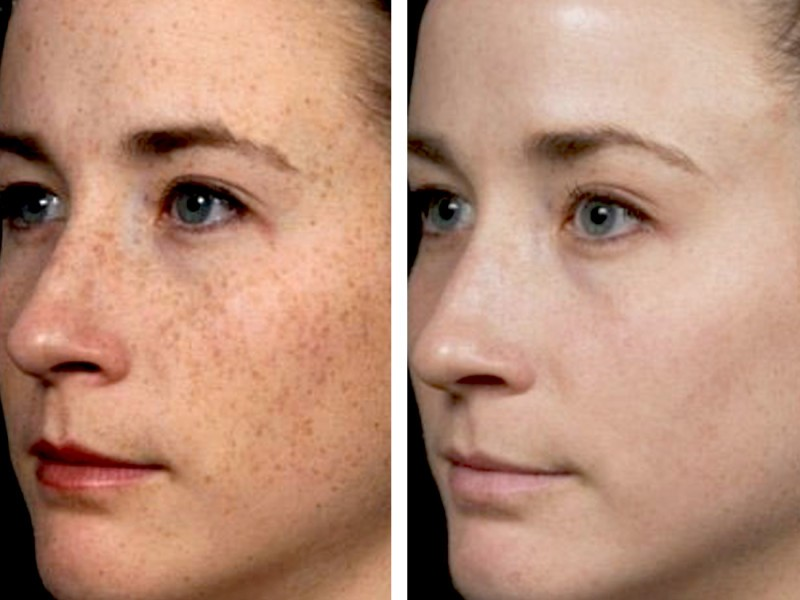 brown-spots-hyperpigmentation