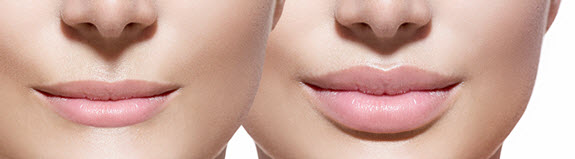 lip-augmentation-lip-fillers