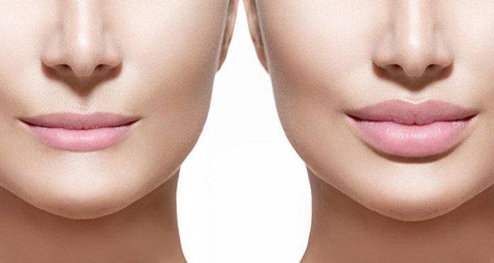 Dos-and-Donts-lip-augmentation