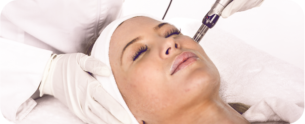 Micro Needling Treatment And Acne Scars