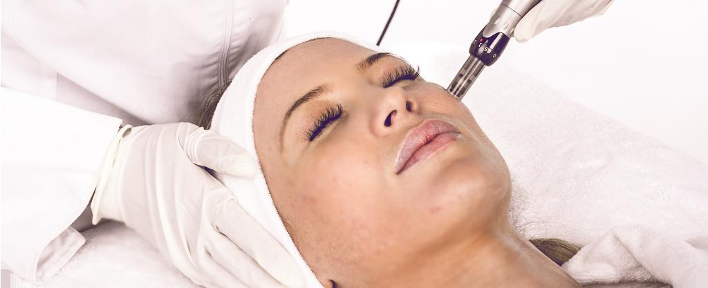 micro-needling-derma-roller-acne-scars