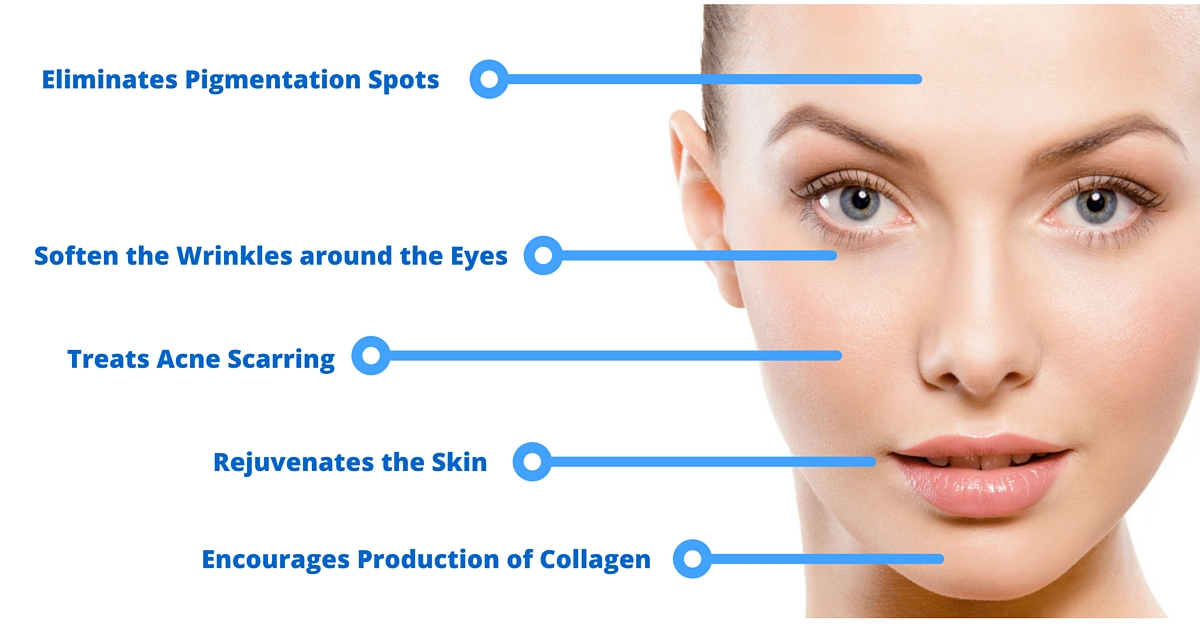 Side Effects of Micro Needling and Derma Roller Treatments