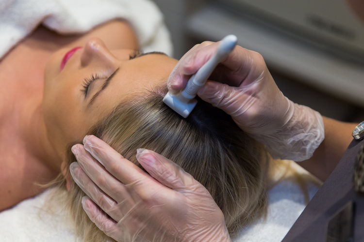 micro-needling-hair-loss-toronto