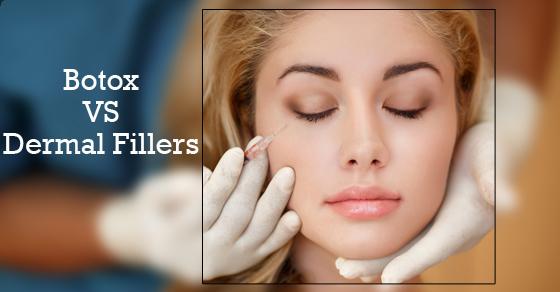 Botox-versus-Dermal-Fillers
