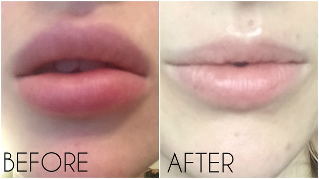 removing dermal fillers with hyaluronidase