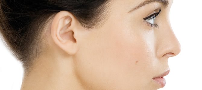Dermal Fillers and Eartox