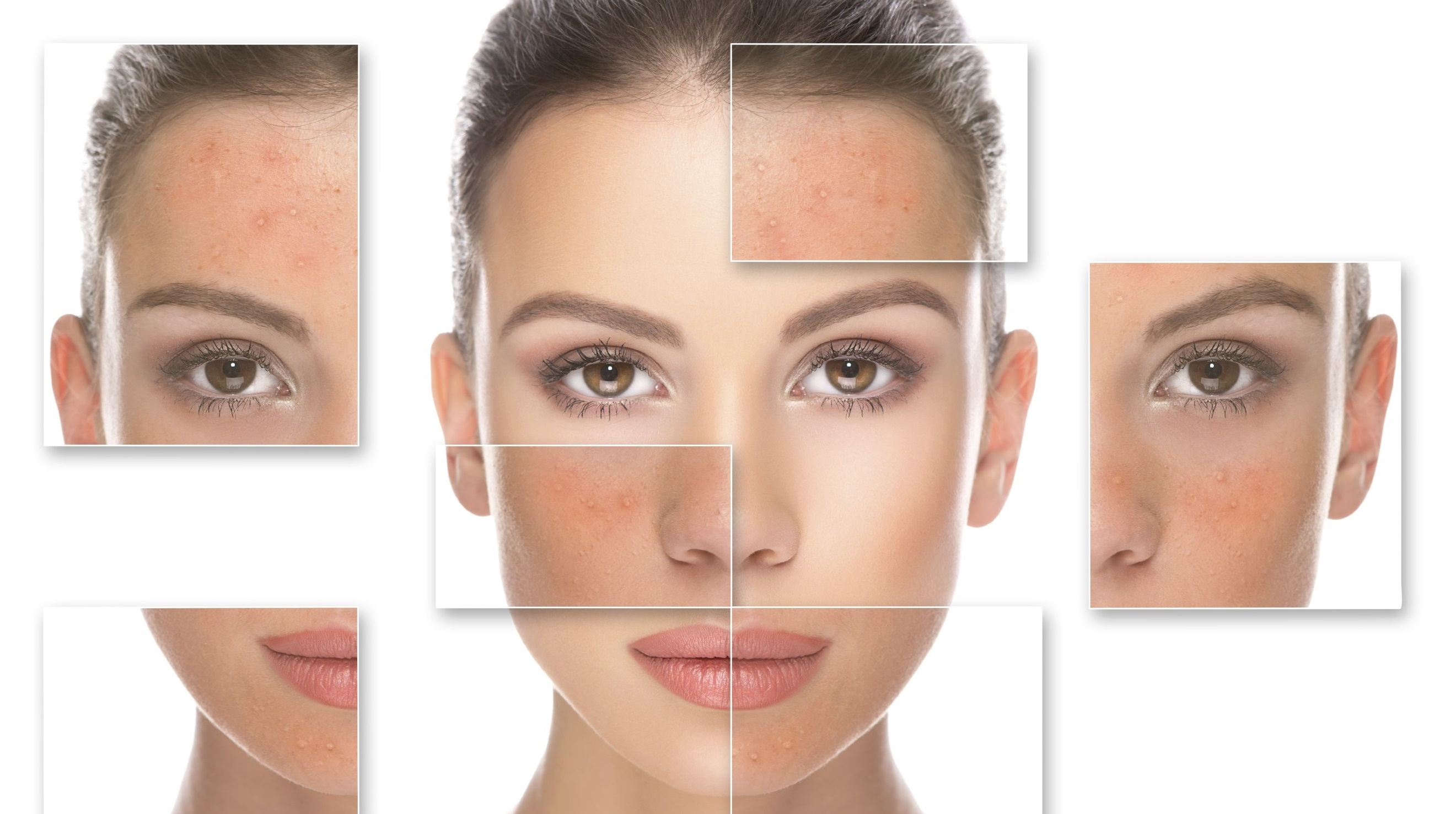 Microneedling and Rosacea