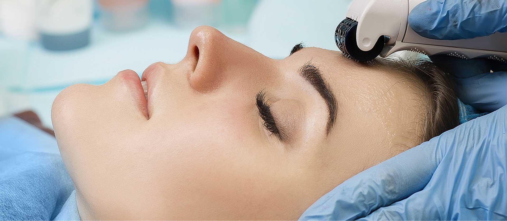 Microneedling Benefits and Side Effects