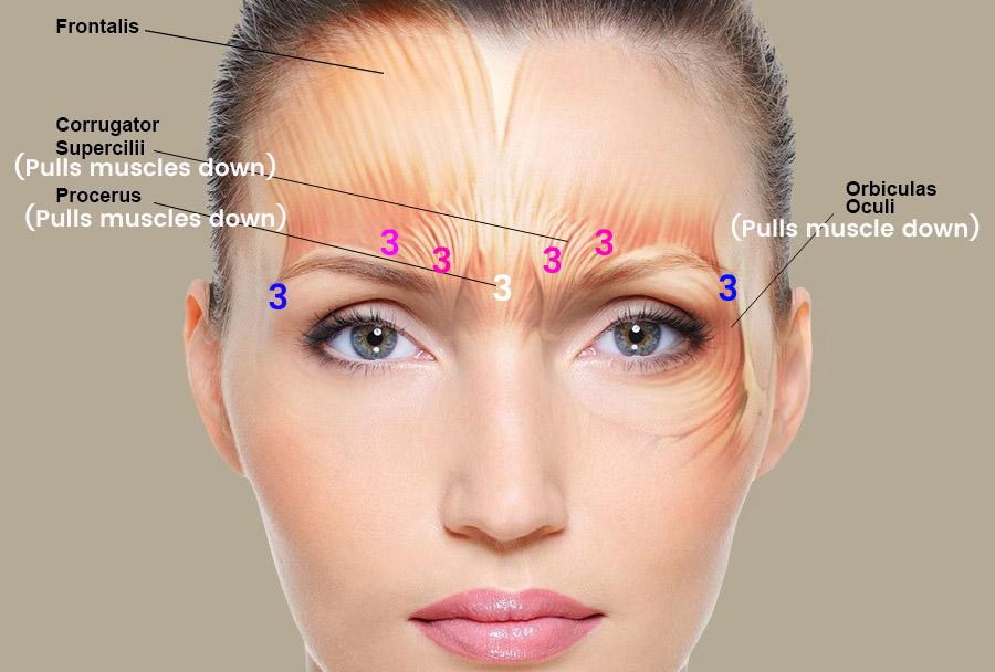 Dr. Ellis Botox and Asymmetrical Eyebrows