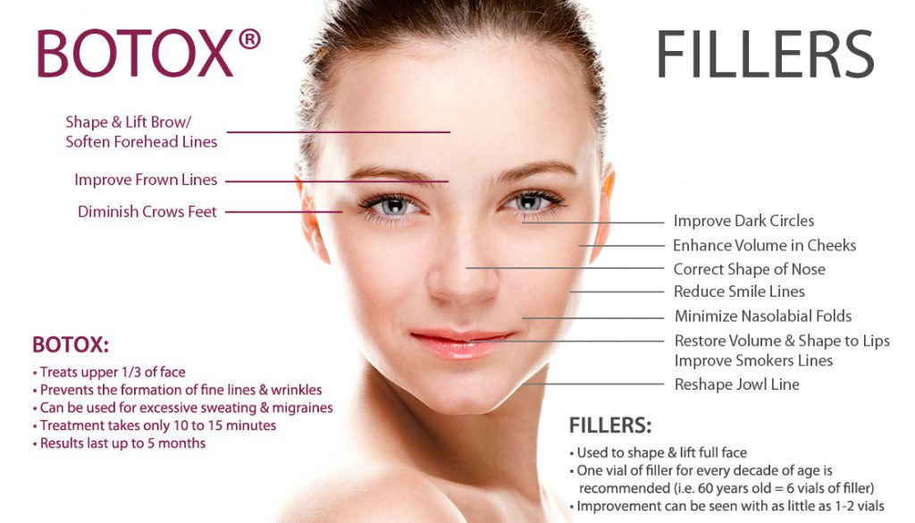 Botox and Dermal Fillers Treatment Areas