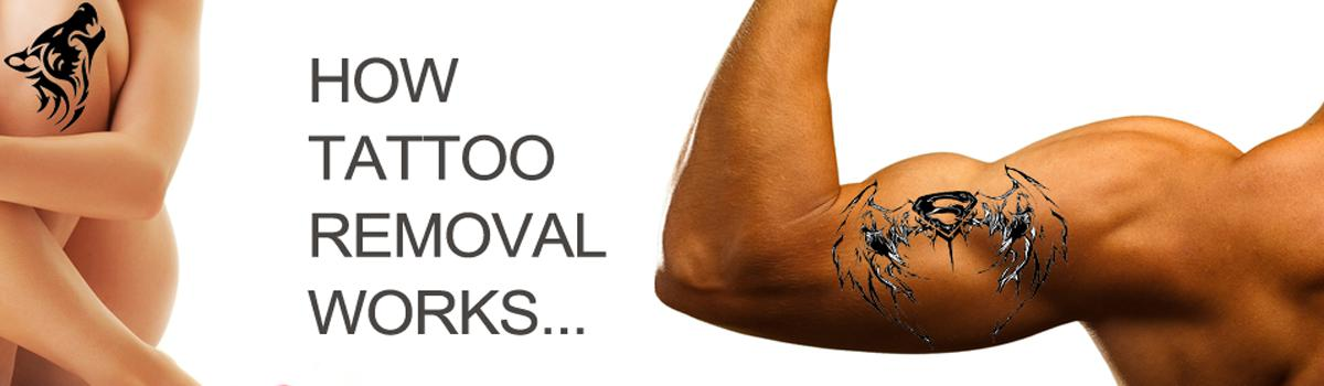 Tattoo Removal Toronto Laser and Non Laser