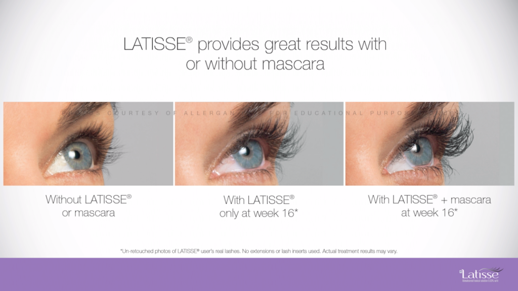 Latisse Eyelash Growth Therapy Serum