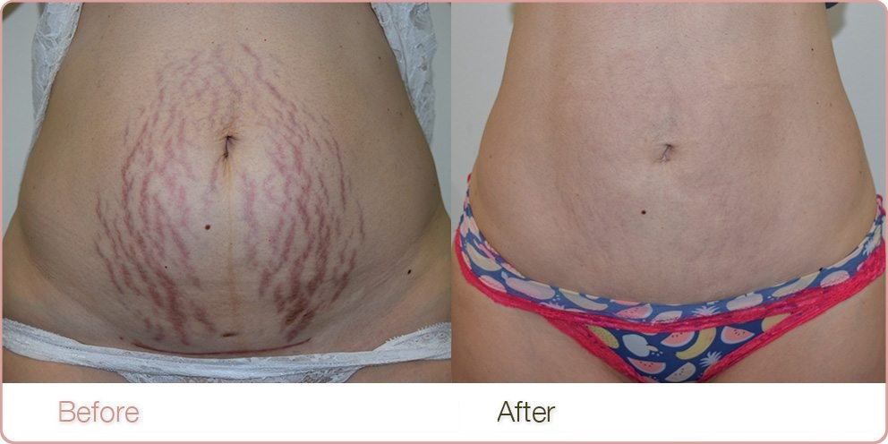 IPL & Stretch Marks