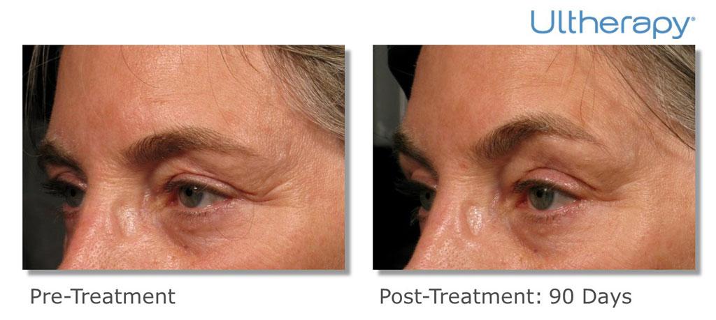 Ultherapy for eyebrow lift