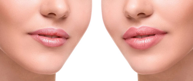 Lip Fillers Vs Fat Transfer