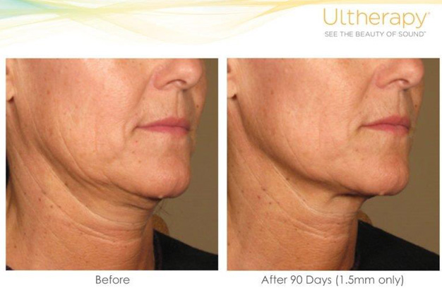 Ultherapy Toronto -The New Superficial 1.5 Tranducer