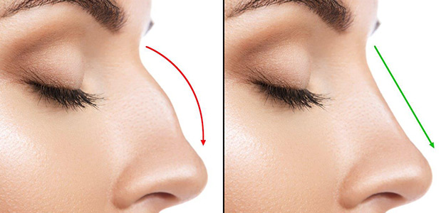 Injectable Nose Job Toronto