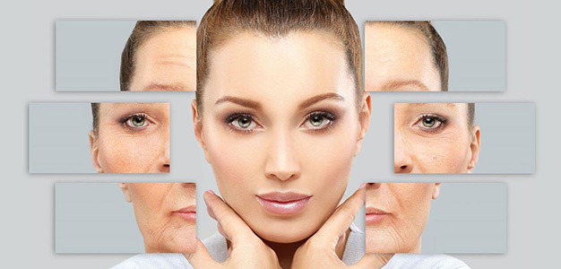 Juvederm Toronto and a Soft lift Toronto