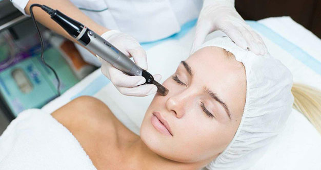 Micro Needling Toronto-What's The Cost?