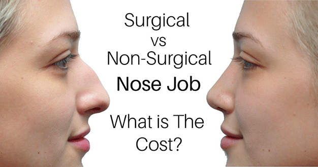 Non surgical Nose Job Toronto The Cost Of Surgical Vs Non surgical