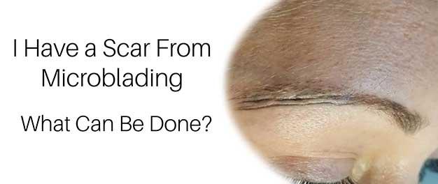 Microblading Scar